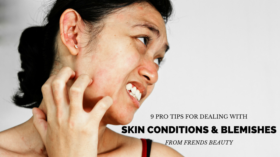 9 Pro Tips For Dealing With Skin Conditions And Blemishes